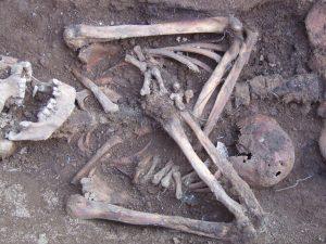 Skelett mit ballförmiger, verkalkter Zyste im Bauchbereich