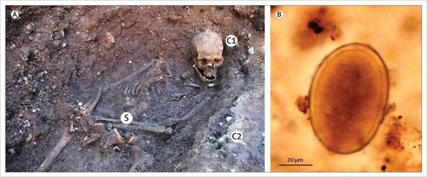 Skelett von Richard III und mirkoskopische Darstellung eines Spulwurmeis